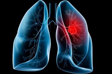 Ung thư phổi: Hệ lụy của đời sống hiện đại