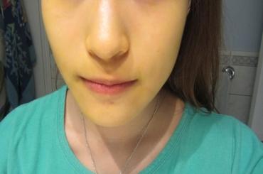Mặt nạ bằng nghệ làm trắng da sau sinh – đem lại nét xuân cho làn da