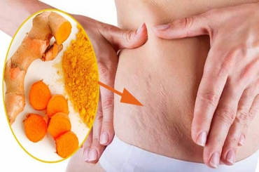 Hướng dẫn cách trị rạn da sau sinh hiệu quả và an toàn