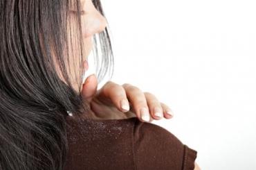 Giải quyết nỗi lo tóc hỏng với dầu gội trị gàu không làm khô tóc
